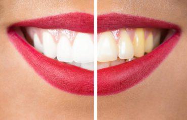 Blanchiments des dents